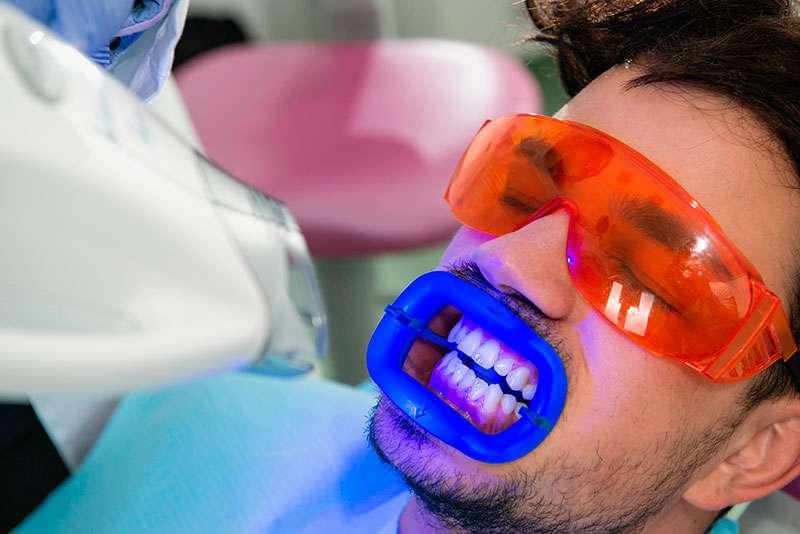 Clareamento Dentario A Laser Como E Feito E Quanto Custa A Rede